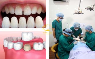 Có Nên Bọc Răng Sứ Không? Những Điều Cần Lưu Ý