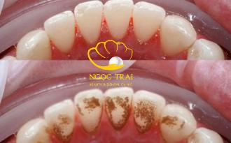Cạo Vôi Răng Và Cách Điều Trị Triệt Để
