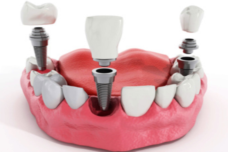 Cac Loai Rang Implant