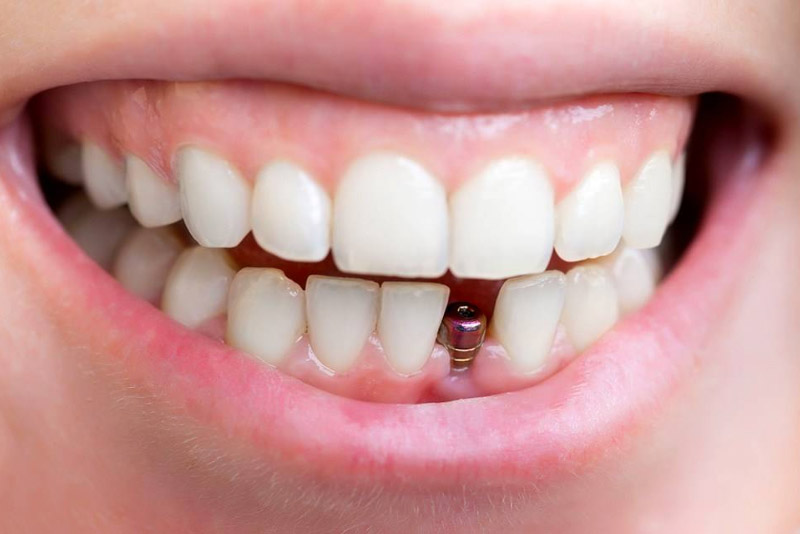 Cay Ghep Implant La Gi