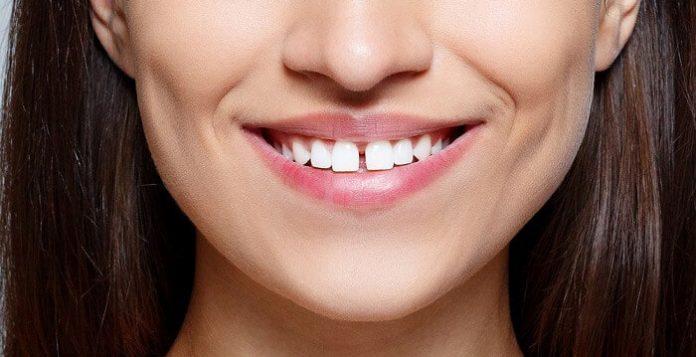 Răng Thưa Hở Kẽ Là Gì? Cách Cải Thiện Răng Thưa
