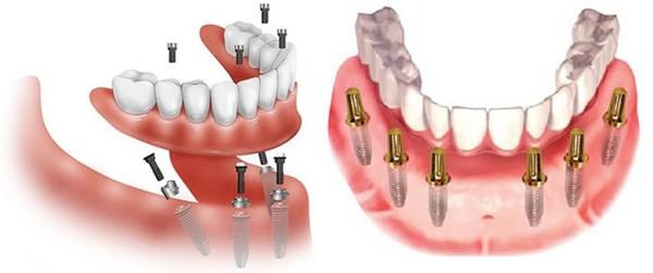 Trồng Răng Implant Là Gì? Ai Nên Trồng Răng Implant?