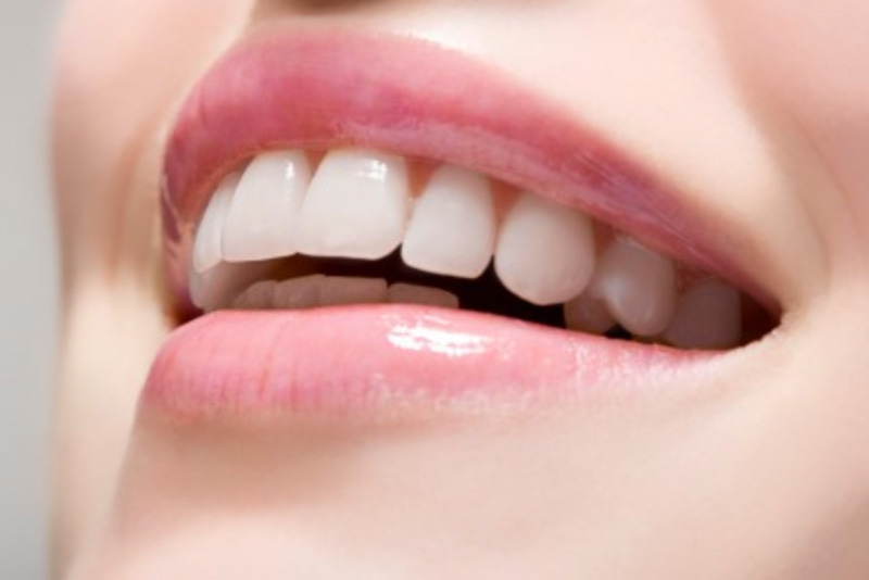 Tìm Hiểu Ngay Các Cách Làm Trắng Răng Trong Vòng 40 Phút