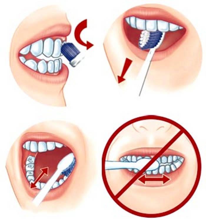 Đâu Là Những Dụng Cụ kKhông Thể Thiếu Khi Niềng Răng?