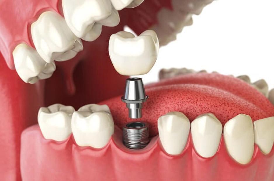 Trong Rang Implant Co Nguy Hiem Khong