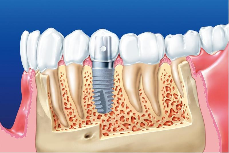 Những Điều Bạn Chắc Chắn Cần Biết Về Cấy Ghép Răng Implant