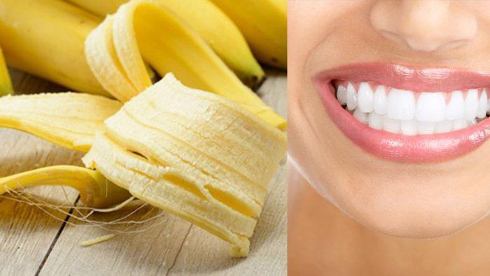 Các Cách Tẩy Trắng Răng Tại Nhà Bằng Chuối Như Thế Nào?
