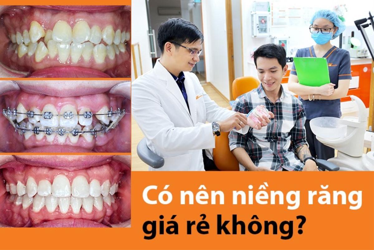 1 Nieng Rang Gia Re 15125998