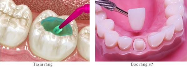 Bị Sâu Răng Nên Bọc Răng Sứ Hay Trám Răng Sứ?