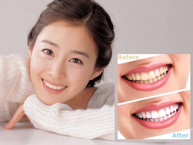 Khái Quát Giữa Khái Niệm – Tẩy Trắng Răng Tại Nhà & Dưỡng Trắng Răng Tại Nhà