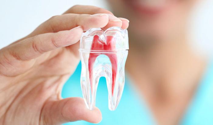 Trám Răng Lấy Tủy Là Gì? Trám Răng Lấy Tủy Có Đau Không?