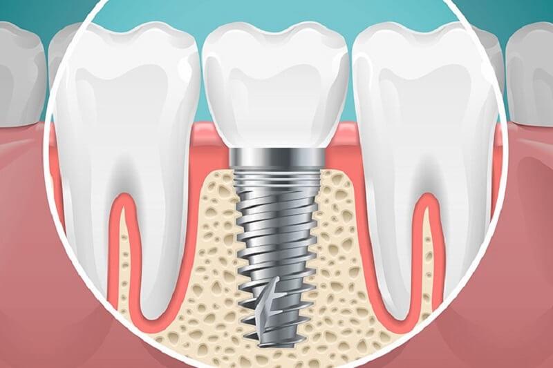 3 Điều Chú Ý Bạn Cần Nhớ Khi Muốn Trồng Răng Implant