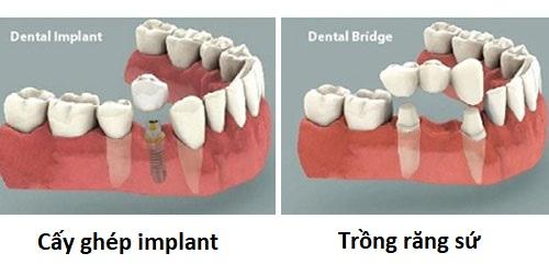 Răng Rụng Nên Trồng Răng Sứ Lại Hay Cấy Ghép Răng?