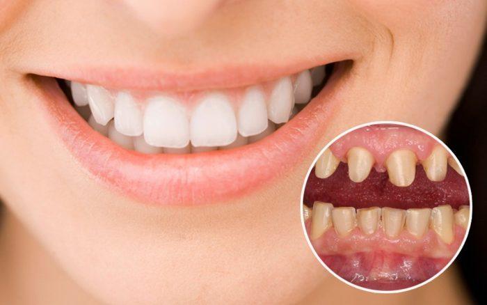 Làm Răng Thẩm Mỹ Và Những Điều Cần Biết Trước Khi Làm Răng?