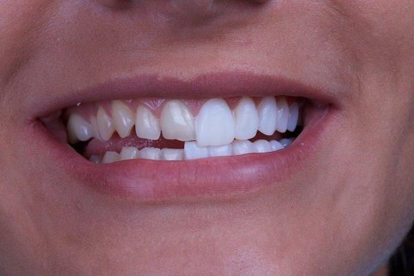 Bọc Răng Sứ Có Bị Xuống Màu Theo Thời Gian Hay Không?