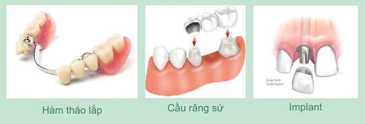 Mách Bạn Các Phương Pháp Trồng Răng Được Khách Hàng Ưa Chuộng Nhất