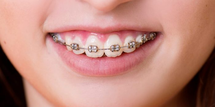 Cách Chăm Sóc Răng Sau Khi Niềng Răng