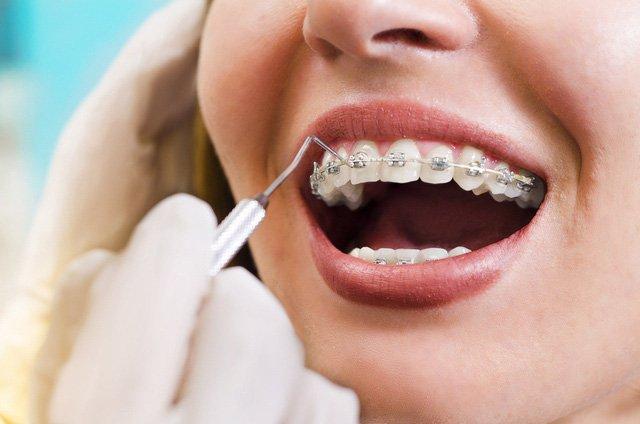 Những Kiến Thức Cơ Bản Về Nắn Chỉnh Răng