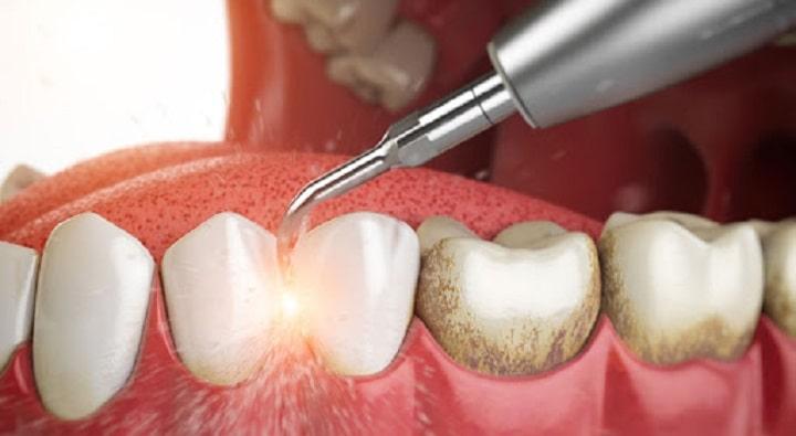 Cạo Vội Răng – Những Thắc Mắc Không Biết Hỏi Ai?