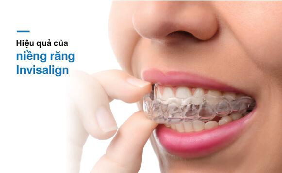 Niềng Răng Invisalign Trong Suốt Và Những Điều Cần Biết