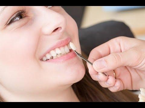Tại Sao Phải Bọc Răng Sứ? Và Những Điều Cần Lưu Ý Khi Làm Răng Sứ?