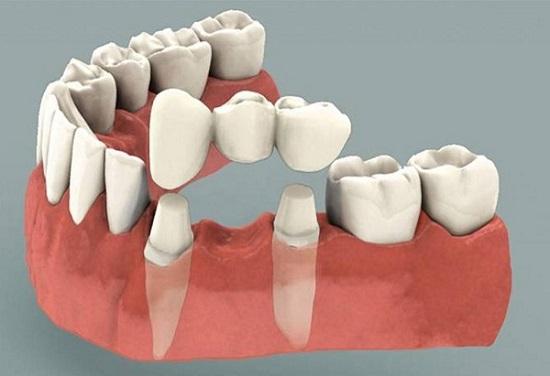 Trồng Răng Là Gì? & Vì Sao Phải Trồng Răng?