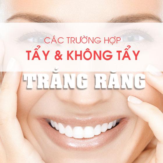 Nhung Truong Hop Nen Va Khong Nen Tay Trang Rang