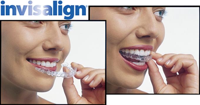 Niềng Răng Invisalign Có Đau Không? Và Quy Trình Thế Nào?