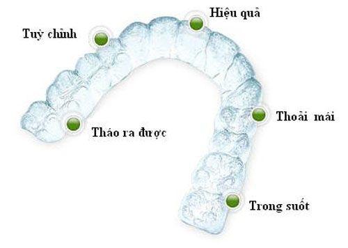 Nieng Rang Khong Mac Cai Invisalign Gia Bao Nhieu Tien 3