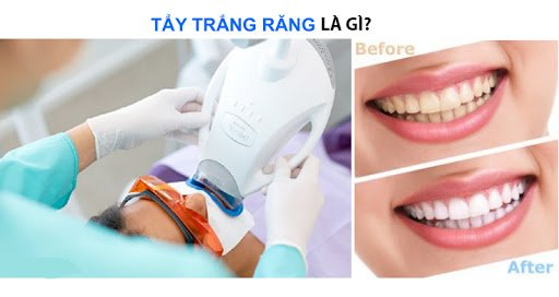 Tay Trang Rang Va Nhung Luu Y Can Biet Ve Lam Trang Rang Tai Nha 01 1564979350 944 Width512height272