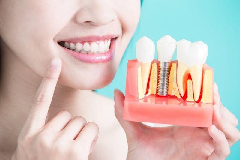 Đặt Implant Có Đau Không? Khôi Phục Chức Năng Ăn Nhai