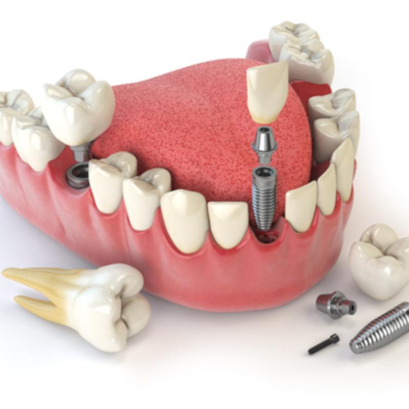 Bảng Giá Làm Răng Implant 2021 | Qui Trình Thực Hiện Về Làm Implant