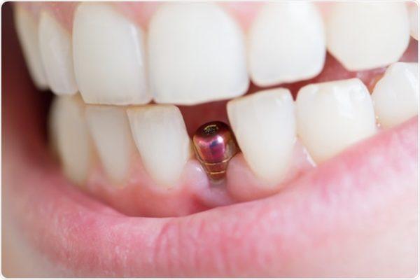 Đặt Implant Có Bị Tác Dụng Phụ Không? Khi Nào Nên Đặt Implant Là Tốt Nhất?