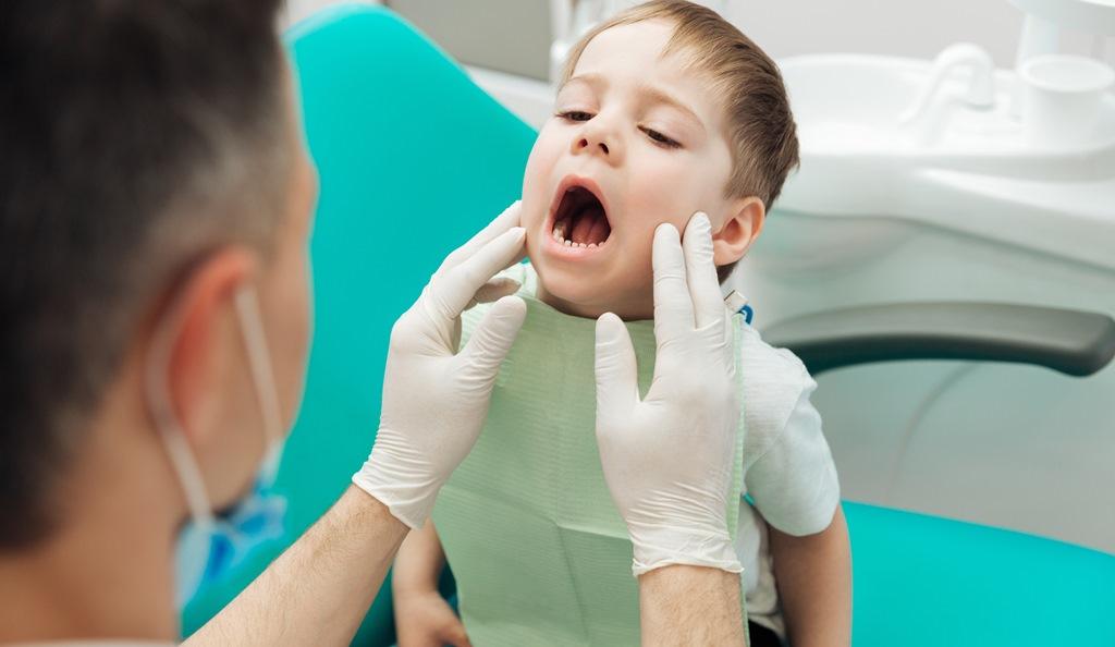 Có Nên Trám Răng Sớm Cho Trẻ Khi Đã Mọc Răng Đủ