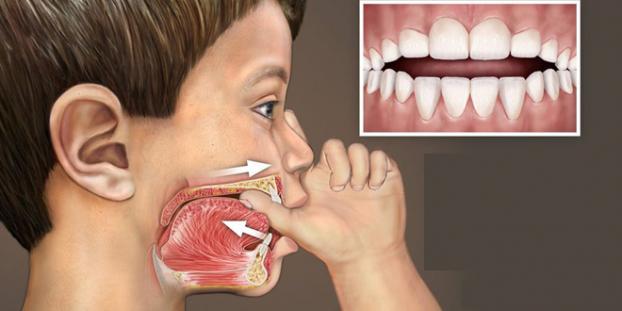 Những Thói Quen Xấu Sẽ Làm Hư Răng Bạn | Nha Khoa Uy Tín Quận 1