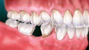 Bị mất răng hàm thì có nên làm lại hay không?