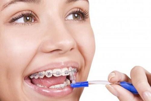 Các biện pháp vệ sinh răng miệng đúng cách khi chỉnh nha