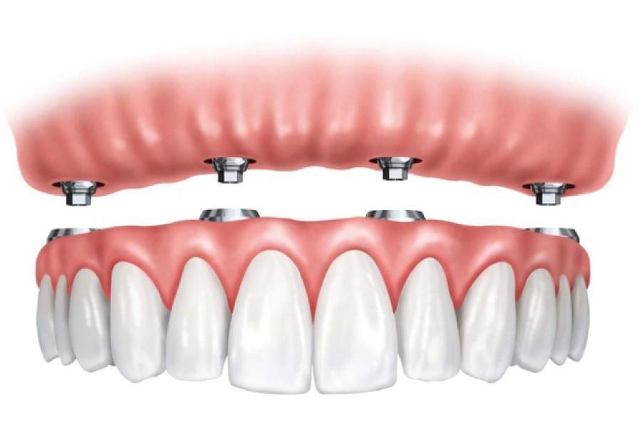 Các phương pháp làm răng – phục hình răng dành cho người già