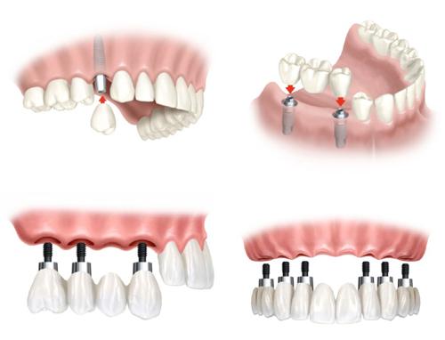 Cách Vệ Sinh Răng Đúng Cách Sau Khi Trồng Răng Implant