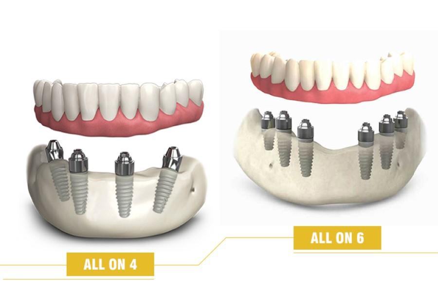Muốn trồng răng vĩnh viễn thì nên lựa chọn phương pháp nào?