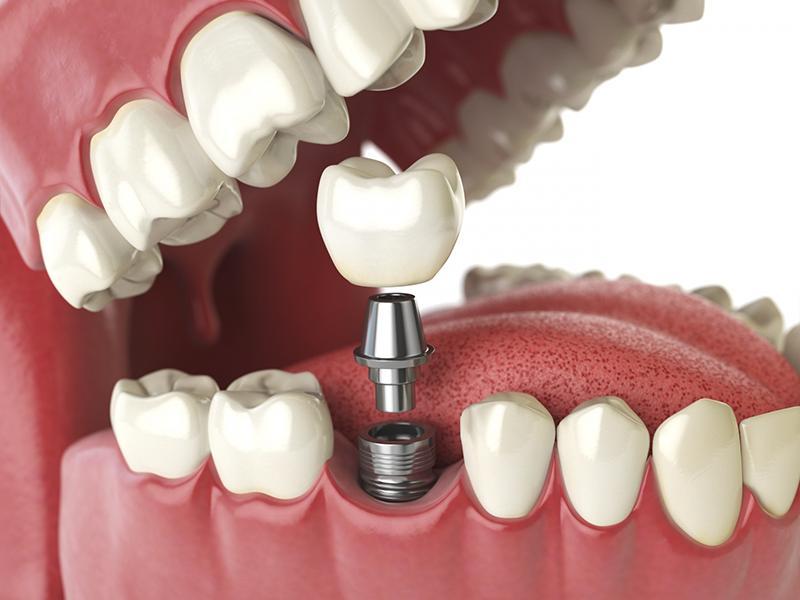 Nha khoa Ngọc Trai | Khi nào trồng răng implant là tốt nhất?