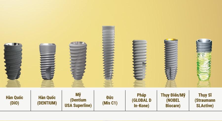Nha khoa Ngọc Trai | Trồng răng implant có bền hay không?