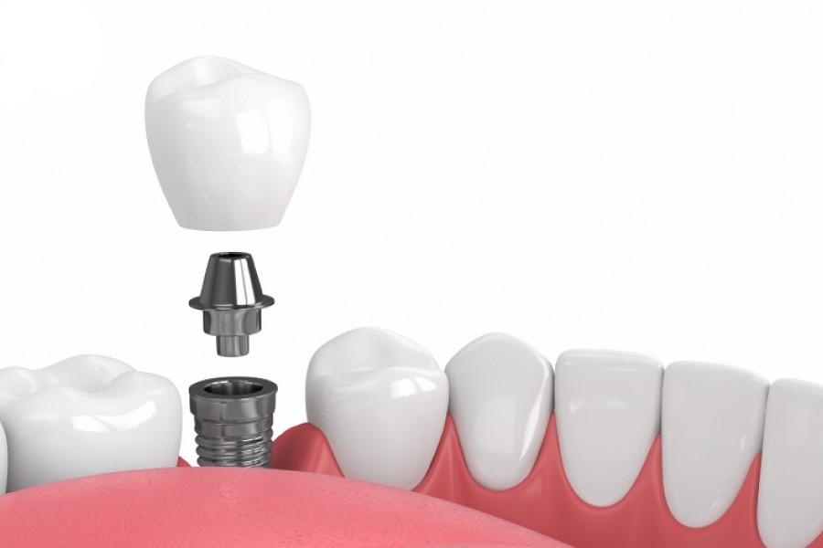 Những gì cần lưu ý khi điều trị mất răng bằng implant?