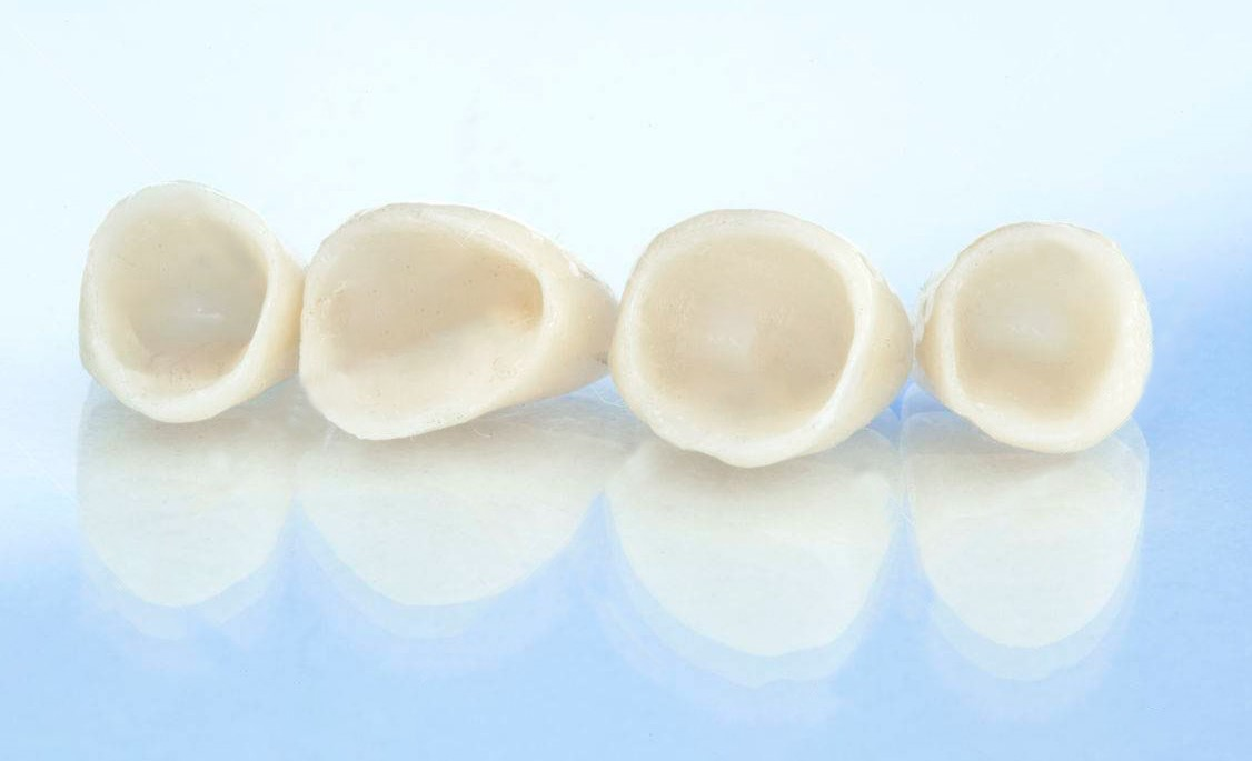 Những lí do khiến việc trồng răng sứ bị hôi miệng và cách xử lí