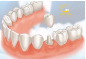 Phục Hình Implant - Giải Pháp Phục Hồi Răng Hoàn Hảo Và Hiệu Quả Nhất Hiện Nay