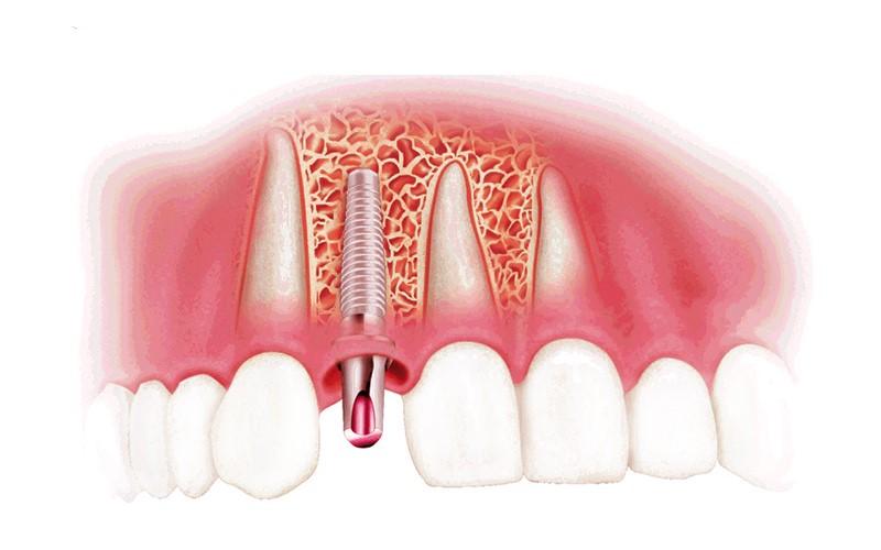 Tại Sao Cần Phải Trồng Răng Implant Khi Bị Mất Răng Vĩnh Viễn?