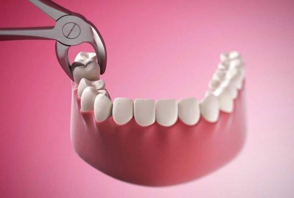 Tại Sao Phải Nhổ Răng Khôn Khi Niềng Răng? Phòng Khám Nha Khoa Uy Tín