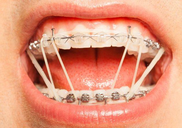 Tẩy Trắng Răng Trước Khi Niềng Răng Có Được Hay Không?