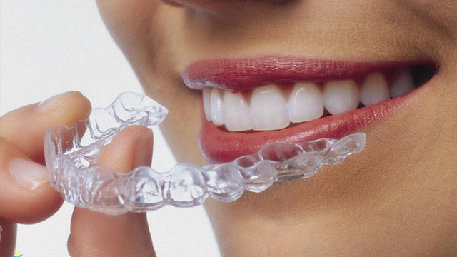 Tổng Quan Về Phương Pháp Niềng Răng Trong Suốt Invisalign