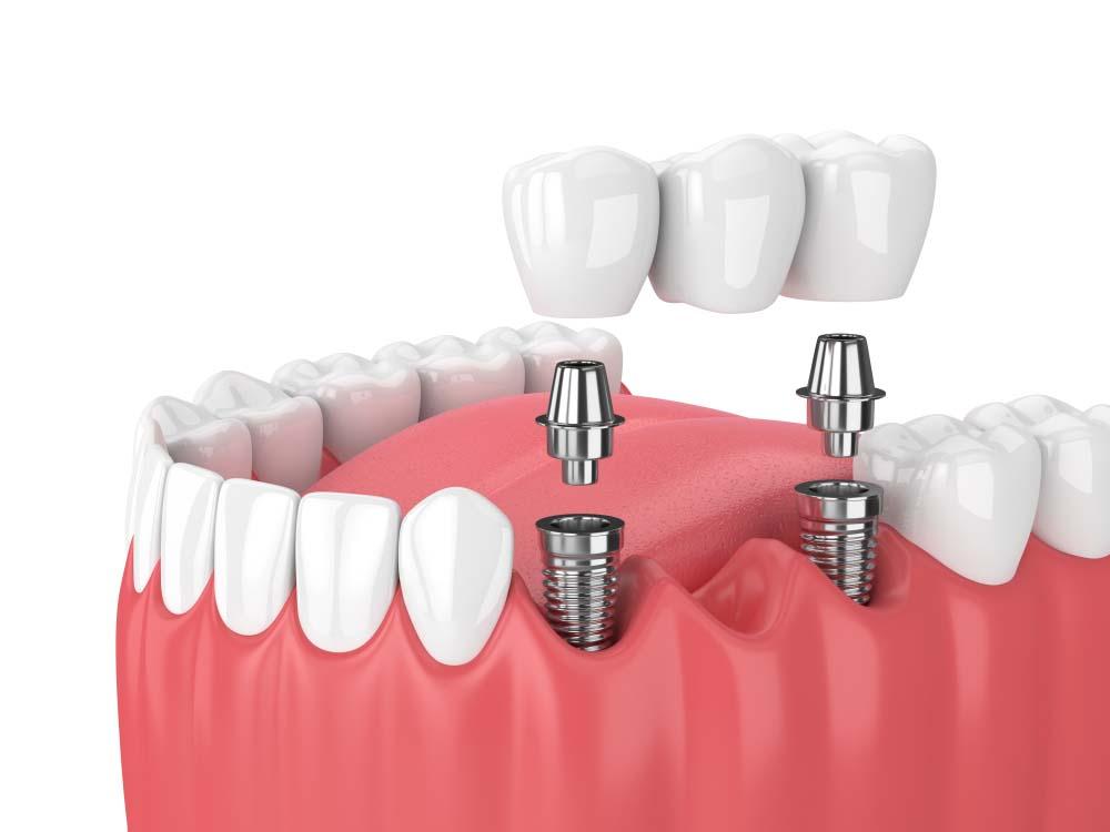 Trồng răng implant là gì? Ưu điểm của trồng răng implant